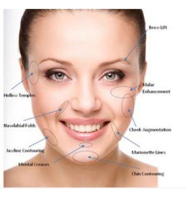 Reposición de volúmenes en pómulos, mentón y arco mandibular